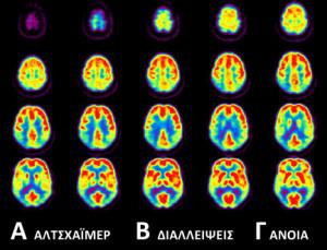 brain-diseases-03